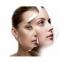 AHA Savas Hámlasztás Bőrmegújító arckezelés